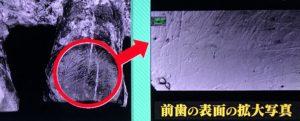 ホモ・ハビリスの歯2